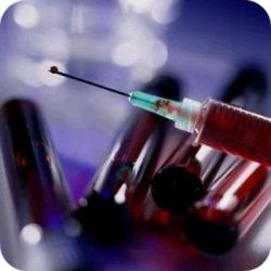 Исследуется новый вирус, похожий на ВИЧ, но передающийся намного легче